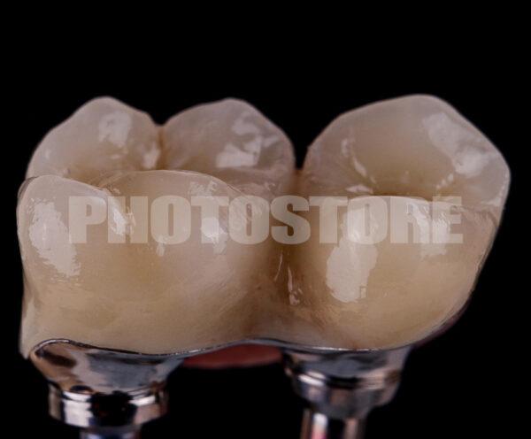 IPLT19   implantologie