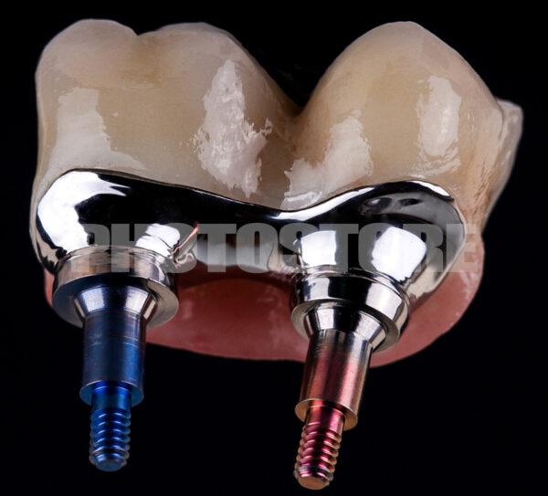 IPLT20 | implantologie