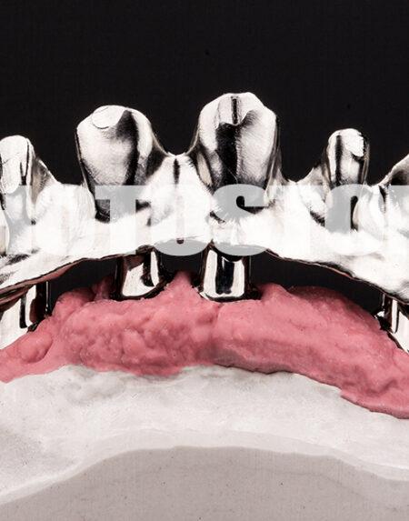 IPLT3 | implantologie