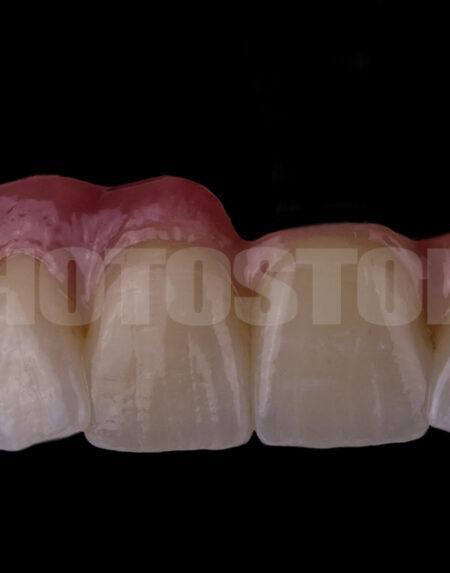 KER11 | dentale Bilder