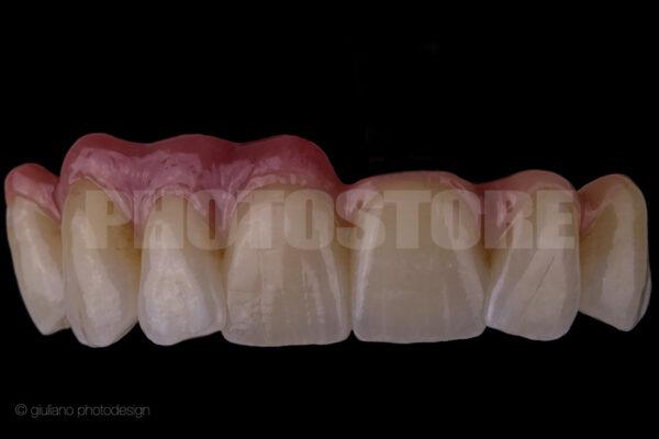 KER11   dentale Bilder
