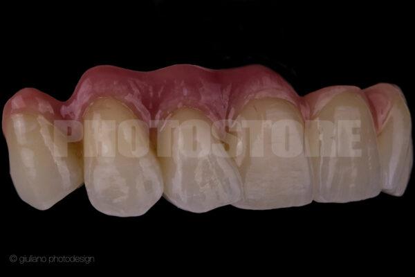 KER12   dentale Bilder