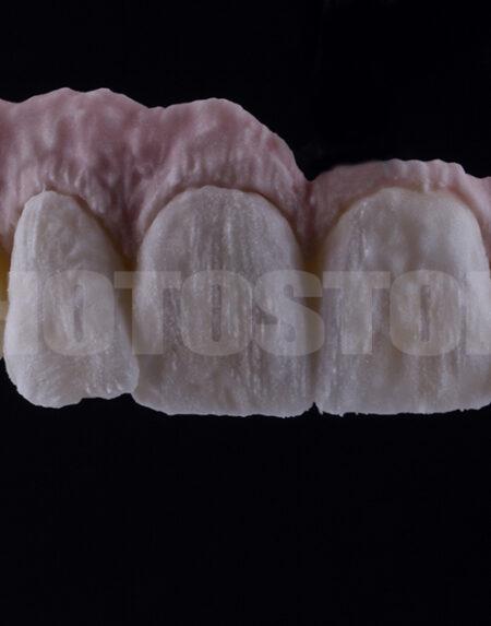 KER13 | dentale Bilder