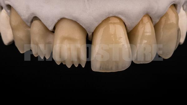 KER16 | dentale Bilder