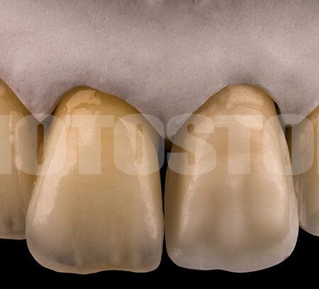 KER17 | dentale Bilder