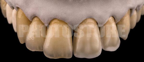 KER17   dentale Bilder