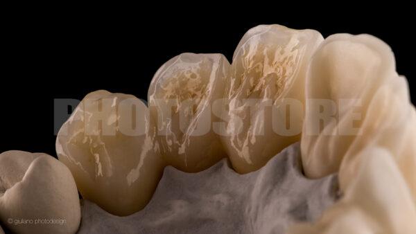 KER18 | dentale Bilder