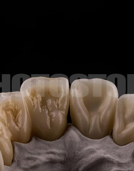 KER19 | dentale Bilder