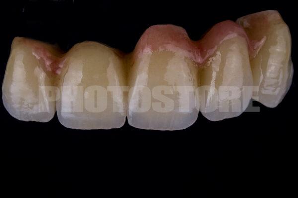 KER2 | dentale Bilder