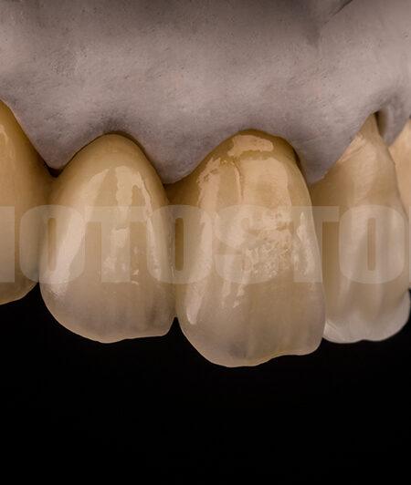 KER20 | dentale Bilder