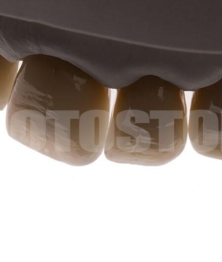 KER26 | dentale Bilder