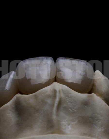 KER3 | dentale Bilder