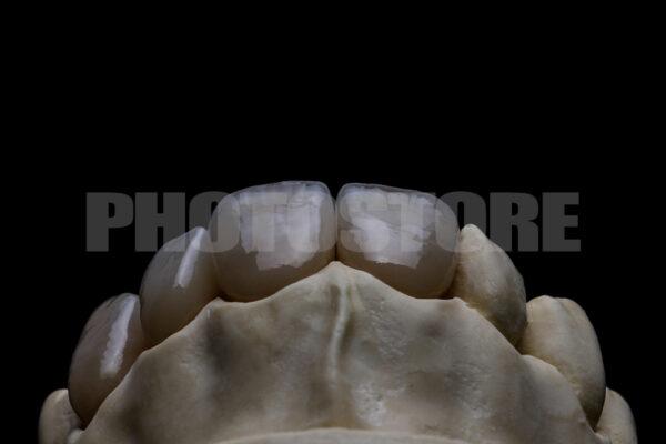 KER3   dentale Bilder