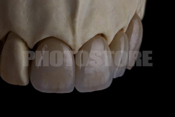 KER4 | dentale Bilder