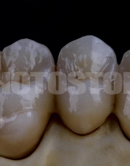 KER5 | dentale Bilder