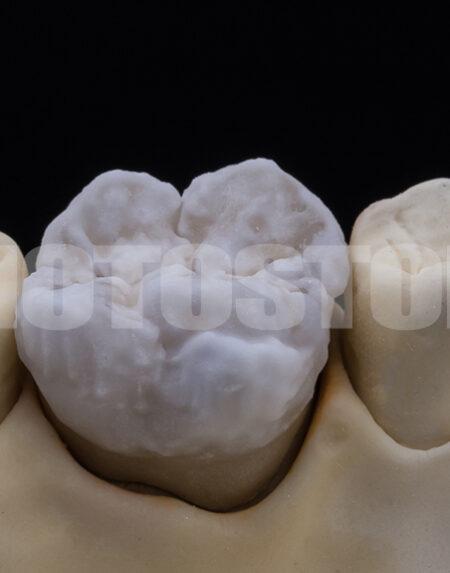 KER8 | dentale Bilder