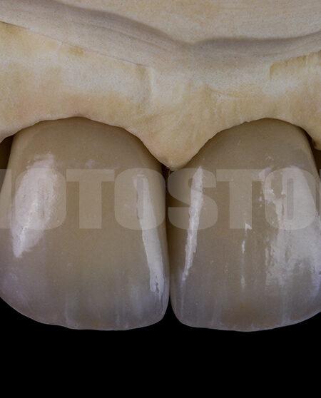 KER9 | dentale Bilder